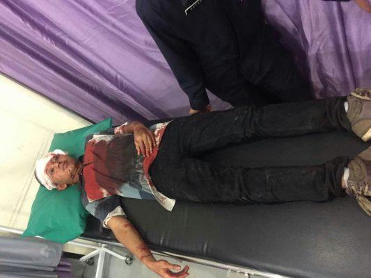 Photo of Ada Ledakan di Rumah Makan Radja Fried Chicken Pondokgede, 3 Orang Luka